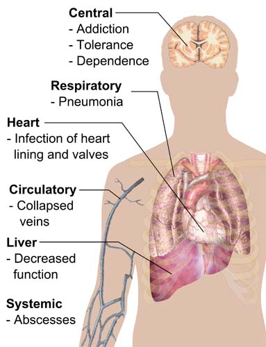 Heroin Addiction - the long-term impact - depiction of heroin addiction on the central, respiratory, heart, circulatory, liver and systemic systems of the human body
